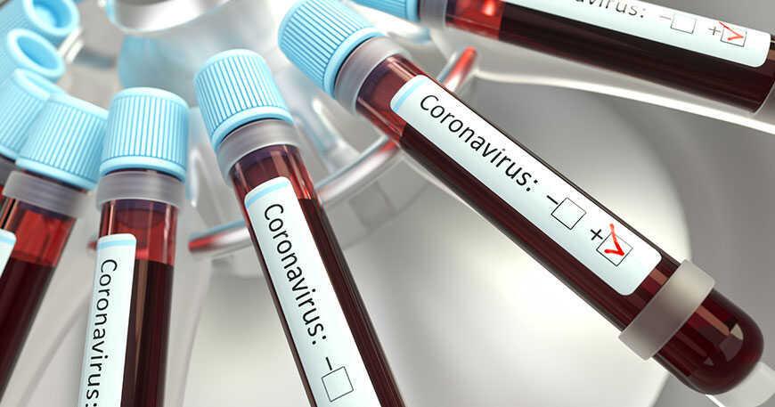 Coronavirus en la economía mundial